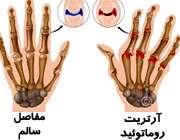 آرتریت روماتوئید چیست؟
