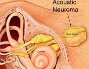تومور گوش