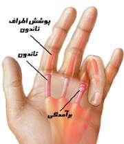 انگشت ماشه ای؛ انگشتی که خم می ماند