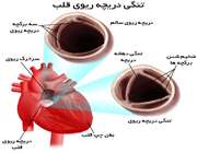 تنگی دریچه ریوی قلب