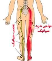 کمر درد سیاتیک