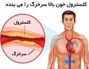 کلسترول خون بالا