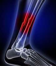 شکستگی استخوان