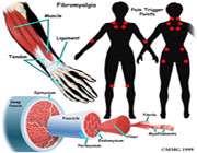 پٹھوں کے درد کی وجوہات