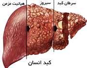 10 نشانه بیماری سیروز کبدی
