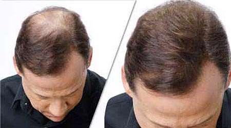موهای سرتان را هم تقویت کنید
