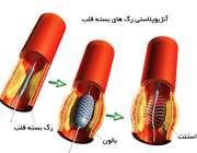 باز کردن رگ های بسته قلب با آنژیوپلاستی