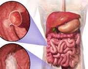 باورهای غلط و درست درباره سرطان روده بزرگ