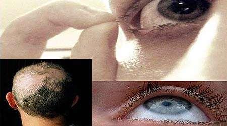 وسواس کندن مو یا تریکوتیلومانیا چیست؟