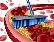 تنظیم چربی خون با تغذیه سالم