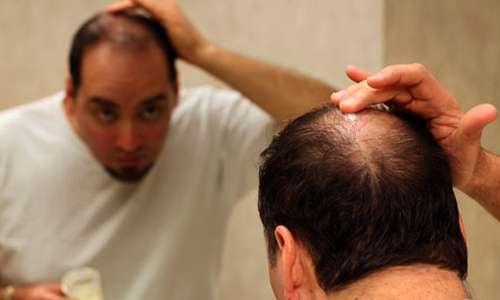 6 عامل مهم ریزش مو در آقایان