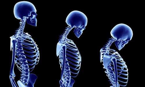 اسکلت بدن، بیماری پوکی استخوان