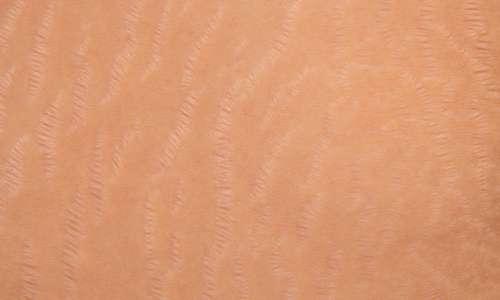 پوست خانم باردار چه تغییراتی می کند؟<br>