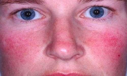 11 مشکل پوستی شایع در بزرگسالان (2)