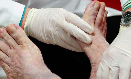 مشکلات پای دیابتی (2)