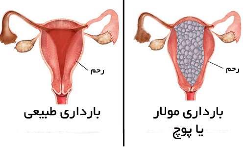 بچه خوره در زنان باردار