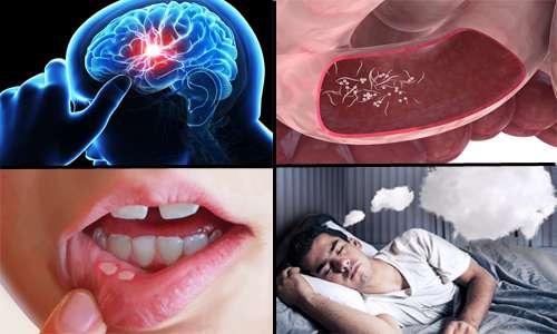 از بیماری ها انگلی تا آفت دهان در بخش سلامت
