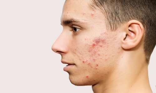 درمان جوش صورت با داروهای گیاهی