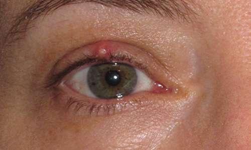 گل مژه چشم؛ راه های پیشگیری و مقابله
