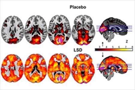 روانگران و مغز