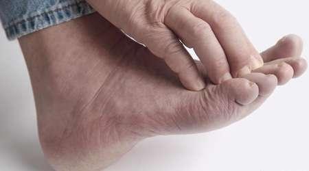 چرا انگشتان پاهایم کرخت می شوند؟