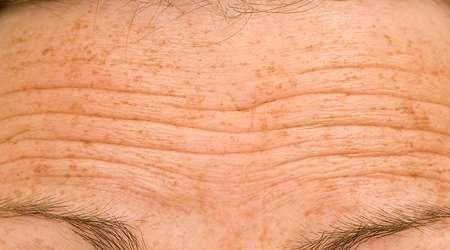 چروک پوست