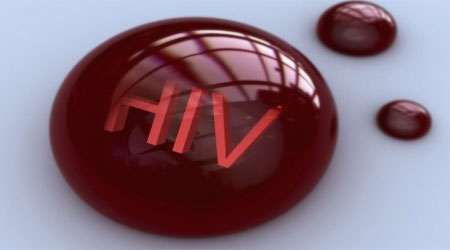 hiv ، ایدز ، ویروس ، پادتن ، میمون