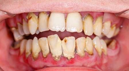 دندان و لثه های بیمار