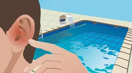 بیماری گوش شناگر