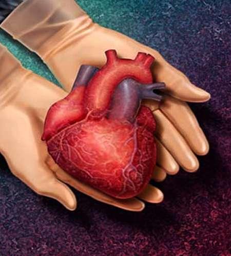 عمل جراحی پیوند قلب