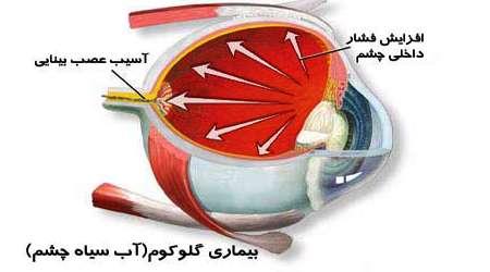 بیماری آب سیاه چشم