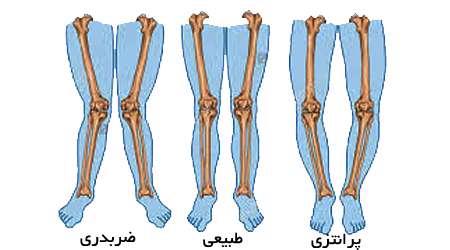 پاهای پرانتزی, پاهای ضربدری