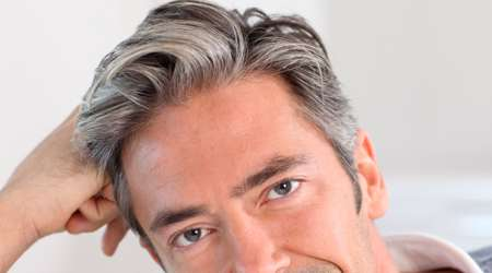 موهای سفید