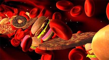 چربی خون و 7 عادت خطرناک