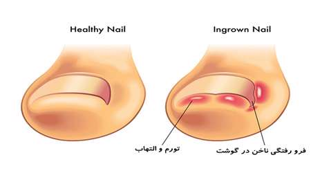 درمان فرو رفتگي ناخن در گوشت